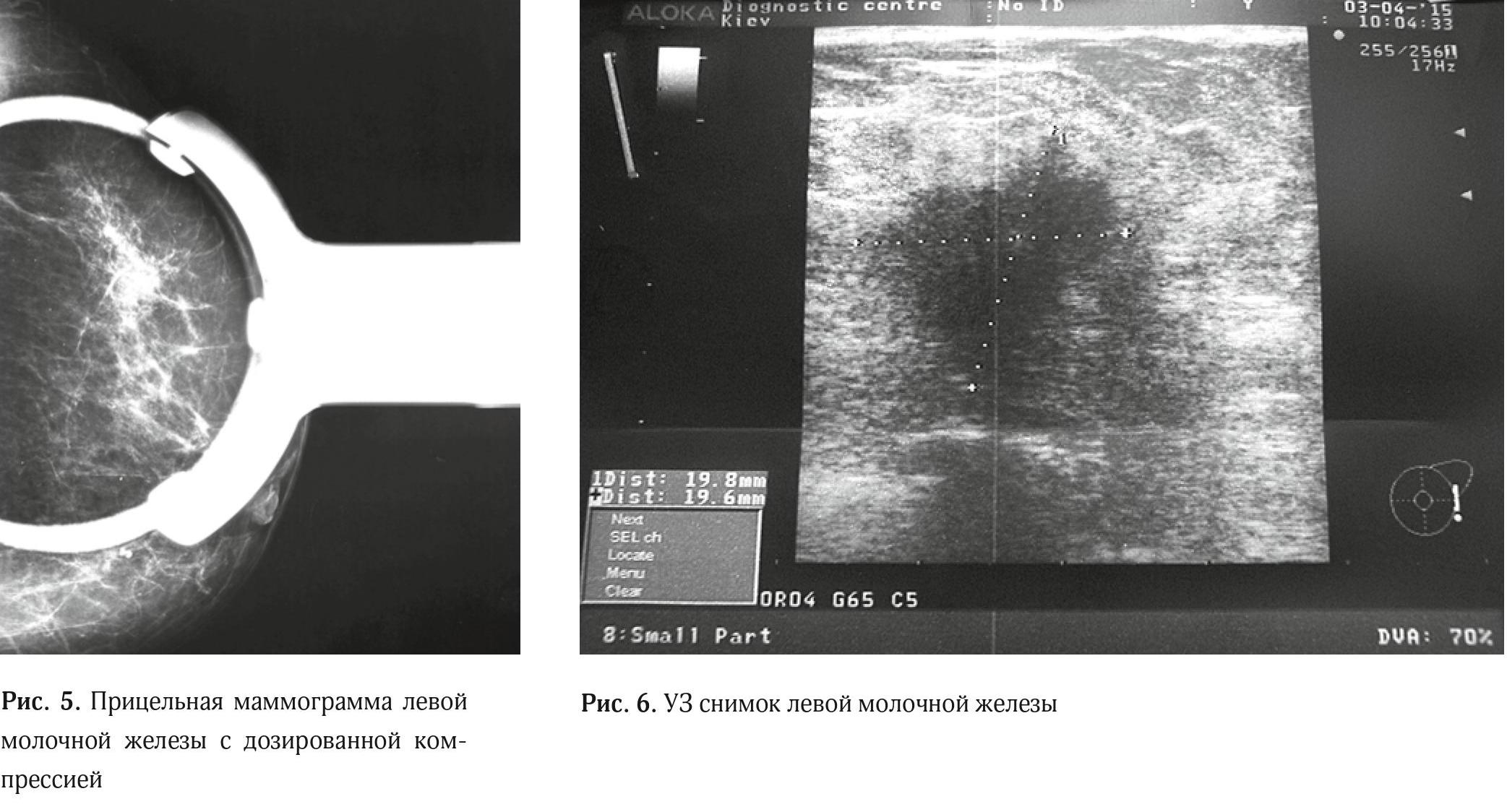 Clinical case granular cell tumor of breast3