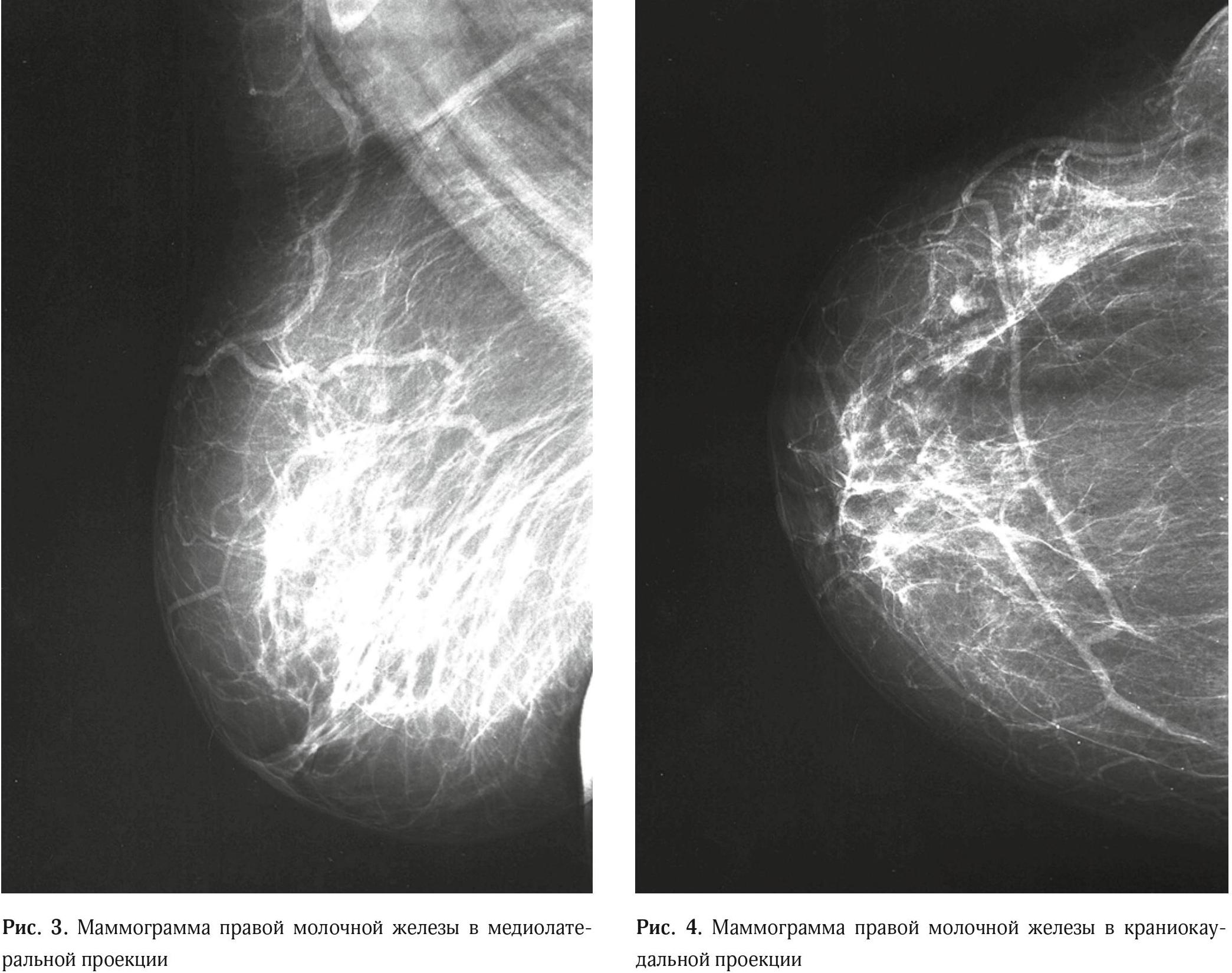Clinical case granular cell tumor of breast 2